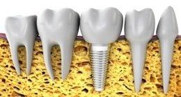 konservative Zahnmedizin, Wurzelbehandlung, Zahnpflege