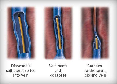 vein catheterization process - Northeast Houston Vein Center - Atascacita, Humble, Kingwood TX