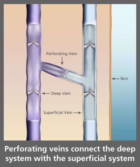 perforating veins - Northeast Houston Vein Center - Atascacita, Humble, Kingwood TX