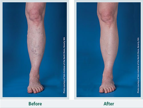 vein treatment before & after - Northeast Houston Vein Center - Atascacita, Humble, Kingwood TX