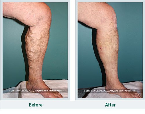 vein treatment before and after - Northeast Houston Vein Center - Atascacita, Humble, Kingwood TX