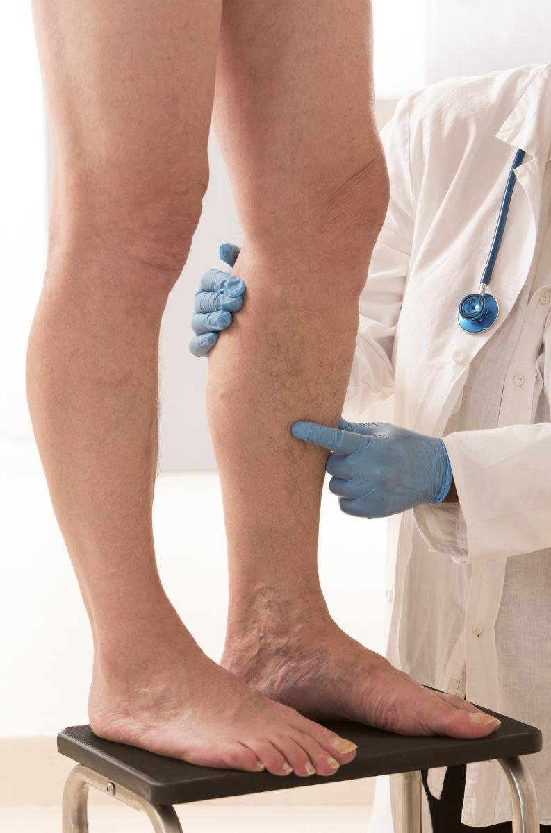 doctor examining leg for vein treatment - Northeast Houston Vein Center - Atascacita, Humble, Kingwood TX