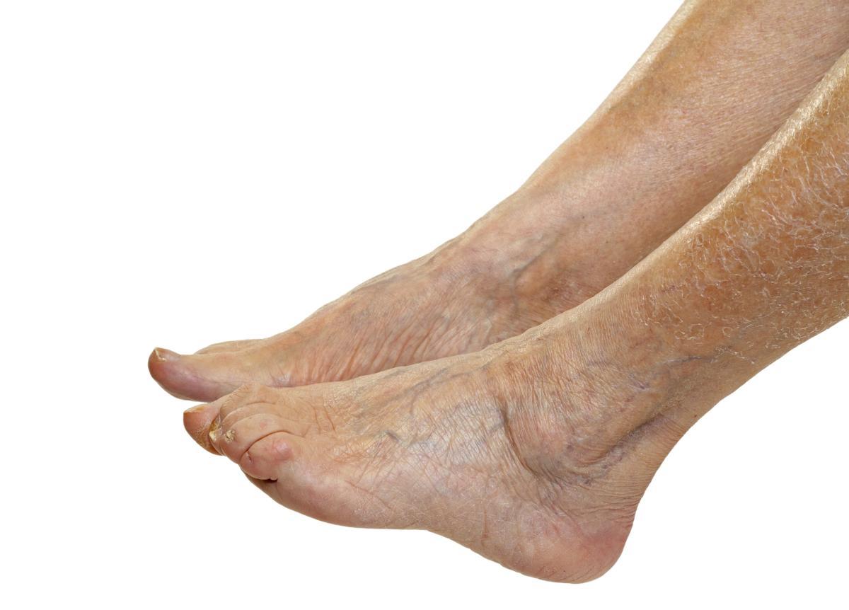 feet with visible veins - Northeast Houston Vein Center - Atascacita, Humble, Kingwood TX