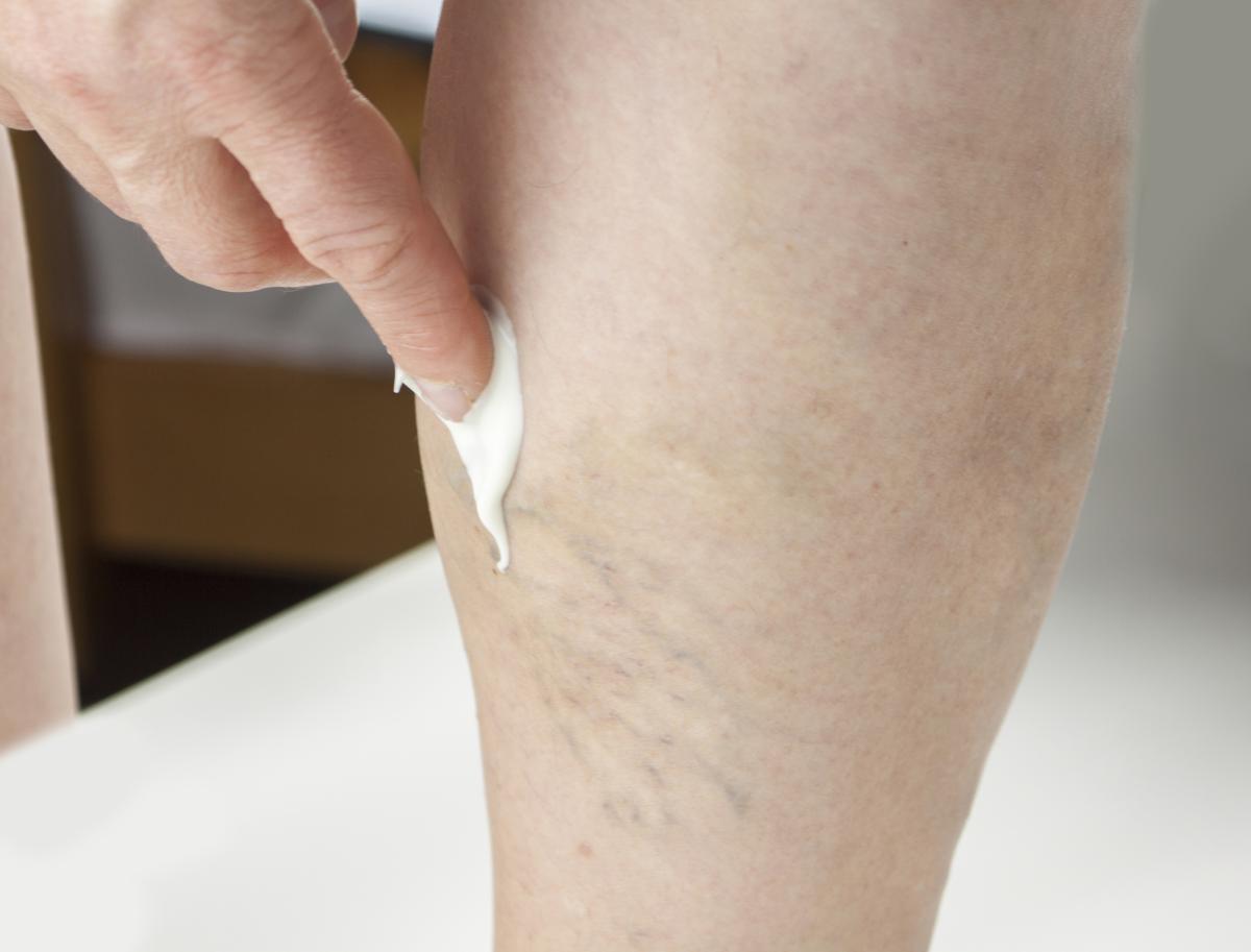 topical vein treatment - Northeast Houston Vein Center - Atascacita, Humble, Kingwood TX