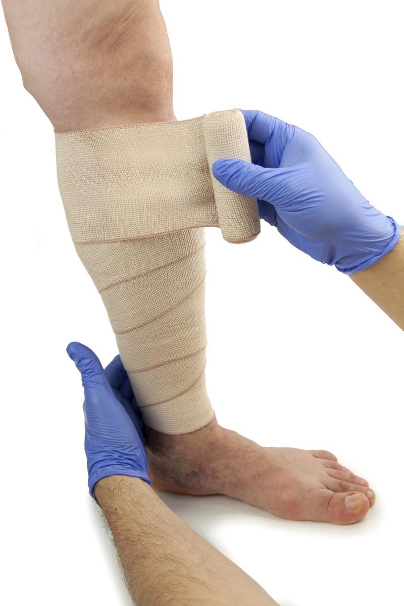 compression bandage treatment for veins - Northeast Houston Vein Center - Atascacita, Humble, Kingwood TX