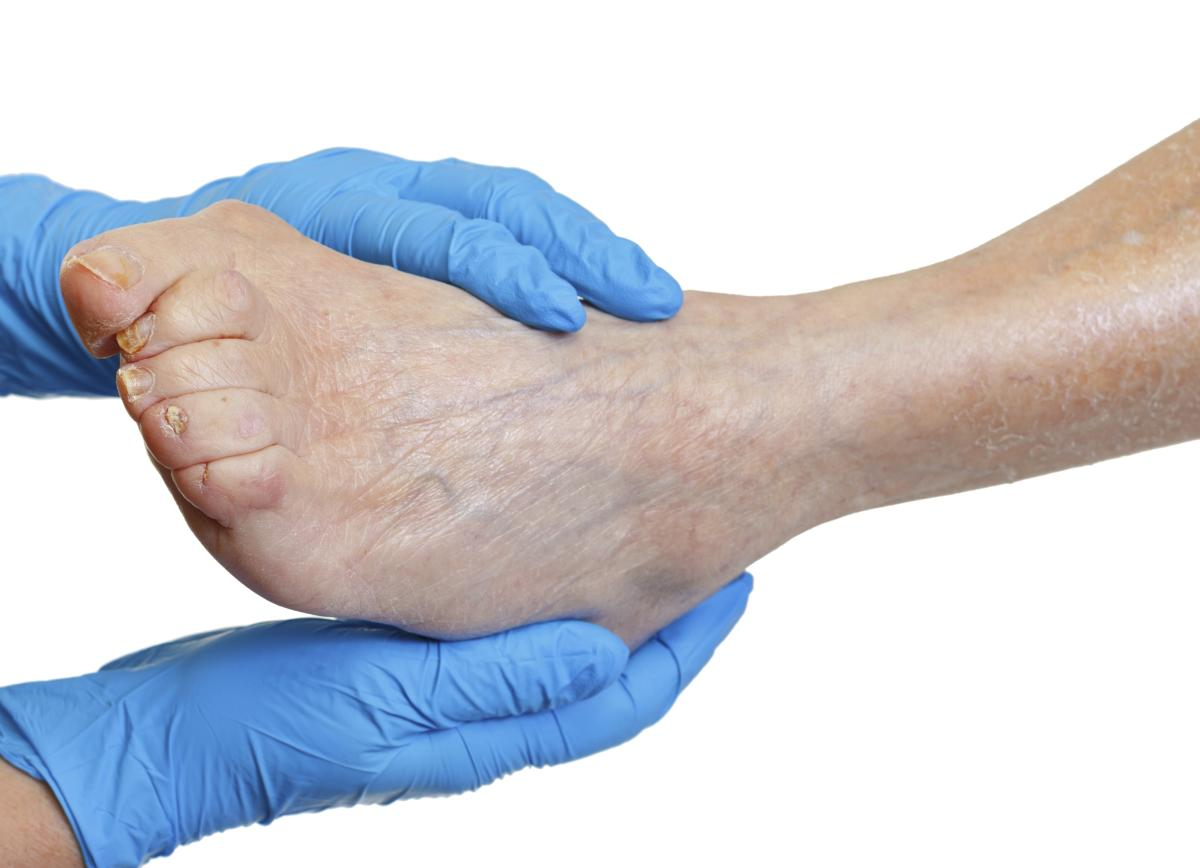 doctor examining foot with vein disorders - Northeast Houston Vein Center - Atascacita, Humble, Kingwood TX