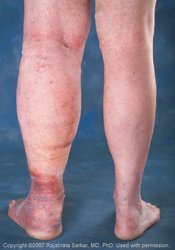 leg swelling (edema)