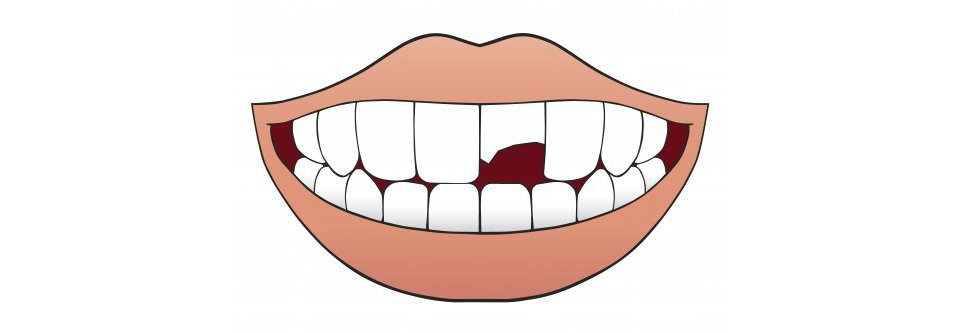 Emergency Dentist in Sioux City for Chipped Tooth Repair