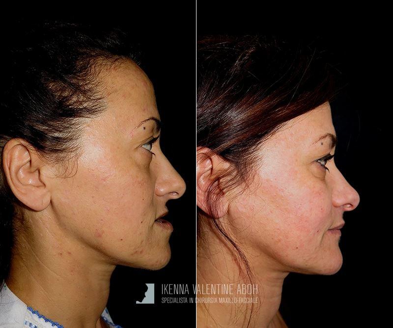 chirurgia-maxilo-facciale