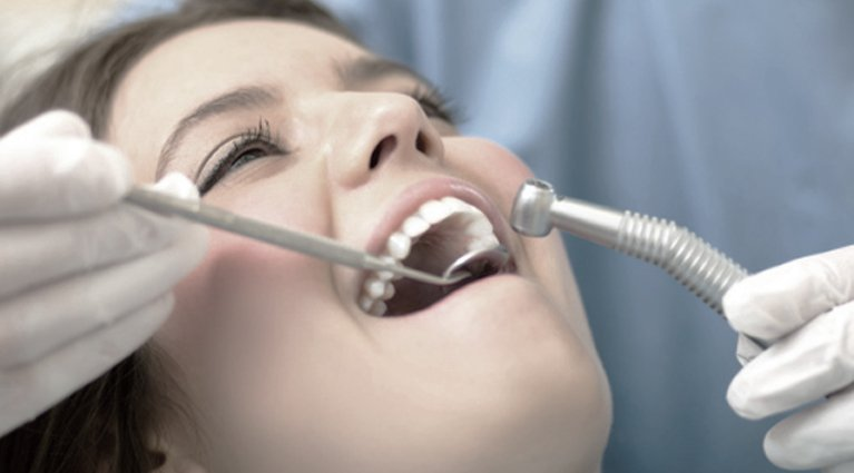 General Dentistry services on a woman in Melbourne