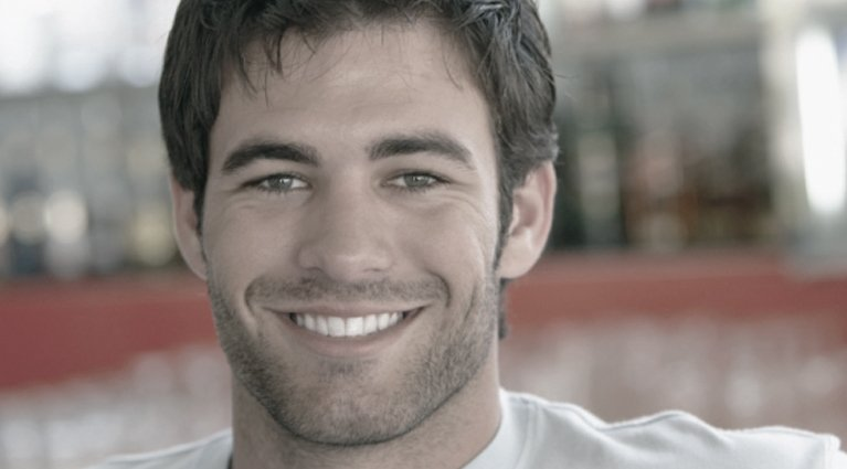 Cosmetic Dentistry on Melbourne man with great smile