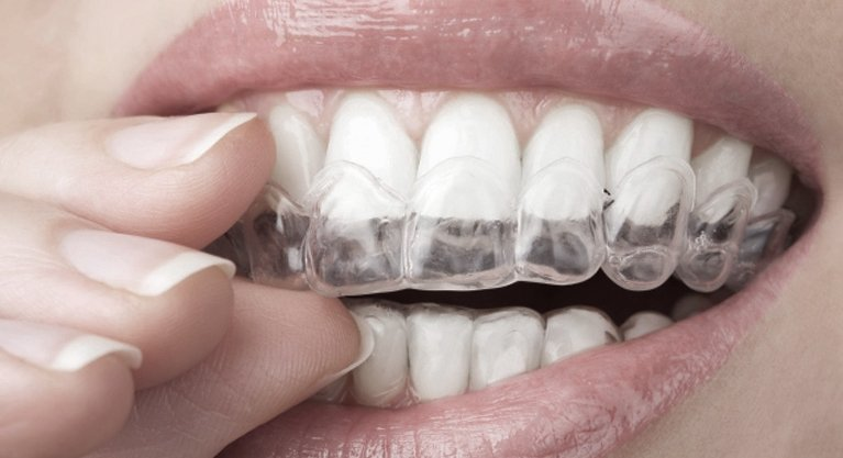 Invisalign & Orthodontics with Melbourne's Collins St Dentist