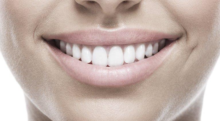 Teeth that had teeth whitening in Melbourne