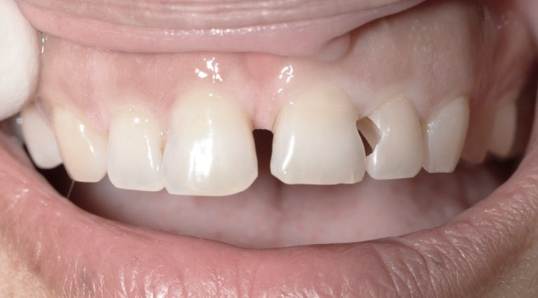 Teeth treatment Before & After Gallery from patients in Melbourne's CBD