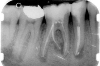interventi endodontici