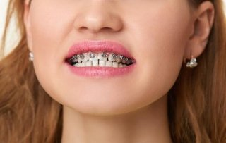 apparecchi ortodontici