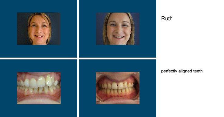 Successful dental surgery