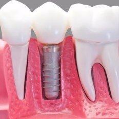 Dental implants in Odessa, TX