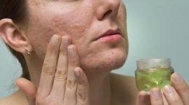 dermatiti, dermatologia allergologica, test allergologici