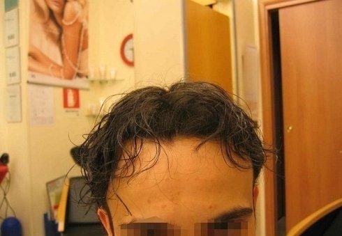 Trapianti di capelli umani