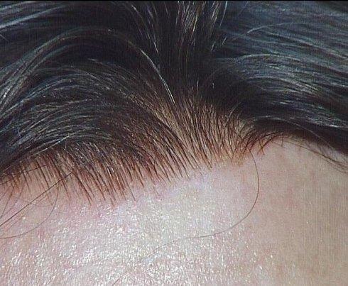 Infoltimento di veri capelli naturali
