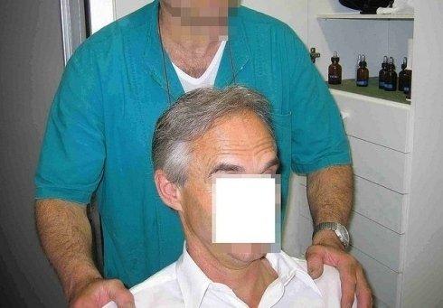 Trapianto di capelli naturali