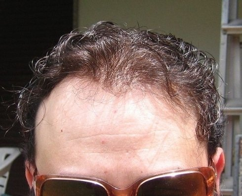 Problemi di caduta dei capelli