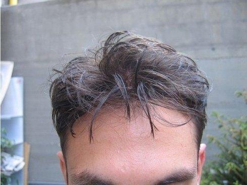 Impianti di capelli umani