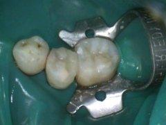 conservativa endodonzia