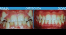 Ortodonzia centro