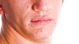 trattamento iperidrosi ascellare, allergologia, chirurgia dermatologica