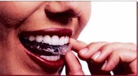 mascherini rimovibili denti