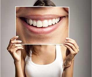 Igene orale e prevenzione