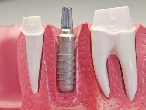 Chirurgia implantare montebelluna