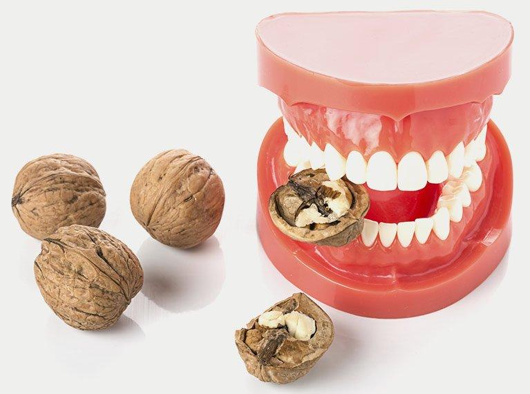 set of new dentures