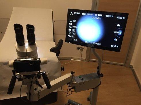 Primo piano dell'apparecchio di echography