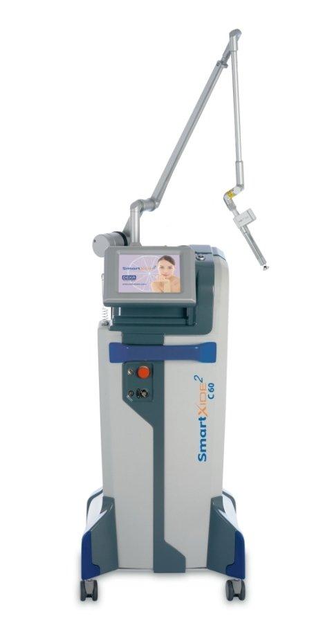 Moderna macchina per echography vaginale