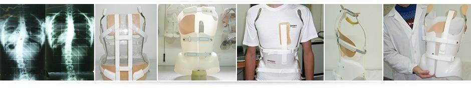Dispositivi ortopedici per la correzione del tronco