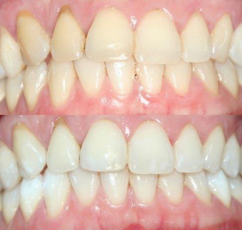 Sbiancamento combinato alla poltrona e domiciliare con mascherine personalizzate, situazione iniziale e a fine trattamento