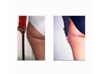 cellulite pre post trattamento