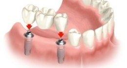 assistenza dentistica, assistenza medico legale, assistenza odontoiatrica
