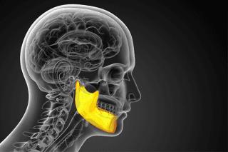 disegno di radiografia al cervello