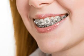 denti con apparecchio fisso