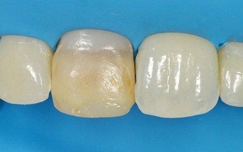 La paziente aveva atteso anni prima di decidere perchè temeva in una terapia costosa e lunga. In realtà il dente non è stato neppure devitalizzato.