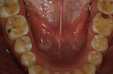 Erosione della superficie smalto-dentinale