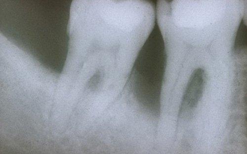 Lesione combinata endo-parodontale, una situazione da affrontare con una terapia combinata.