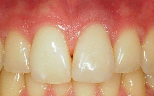 Il caso dopo quattro settimane dalla devitalizzazione del dente necrotico.