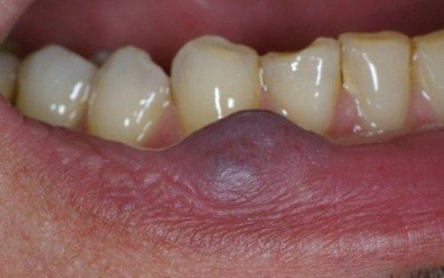 neoformazione angiomatosa labbro inferiore