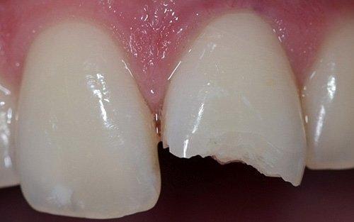 Notare le molteplici rime di frattura lungo il tessuto smalteo.
