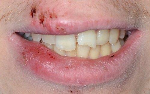 Oltre al trauma dei tessuti molli, sono presenti fratture dentali multiple.